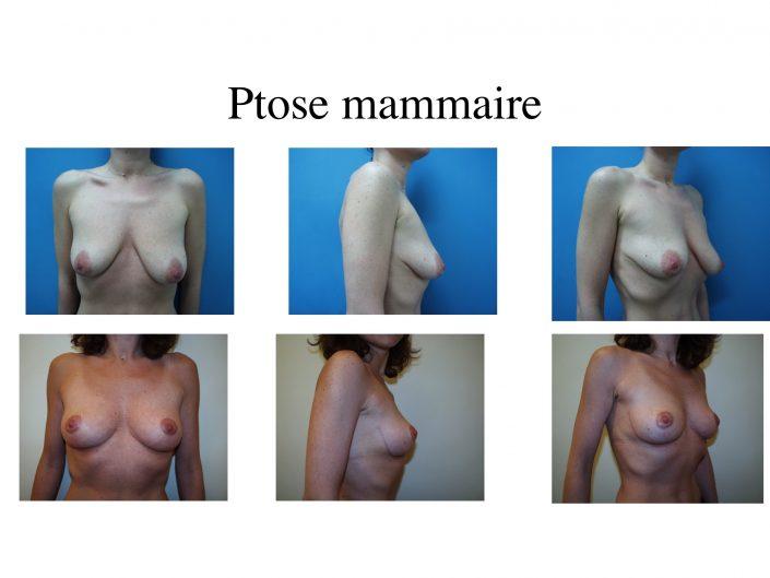 Ptose mammaire à Marseille - Avant / après - Dr Jauffret, chirurgien plasticien