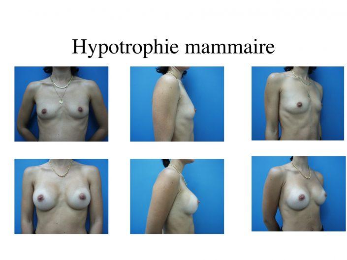 Hypertrophie mammaire à Marseille - Avant / après - Dr Jauffret, chirurgien plasticien