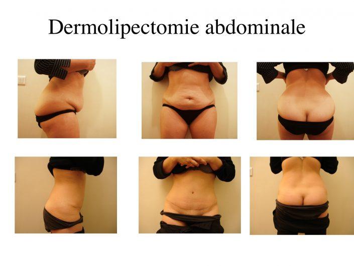 Plastie abdominale à Marseille - Avant / après - Dr Jauffret, chirurgien plasticien