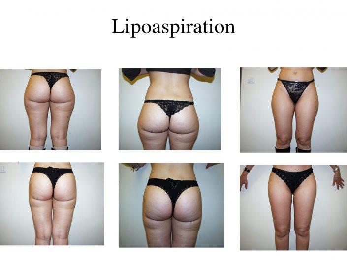 Lipoaspiration ou liposuccion à Marseille - Avant / après - Dr Jauffret, chirurgien plasticien