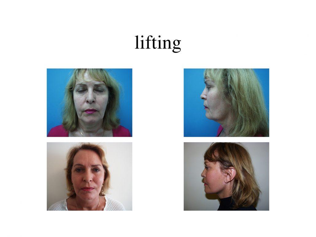 Lifting du visage à Marseille - Avant / après - Dr Jauffret, chirurgien plasticien