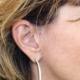 Minilifting du visage à Marseille - Dr Jauffret, chirurgien plasticien