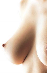 Ptose mammaire à Marseille - Chirurgie esthetique des seins