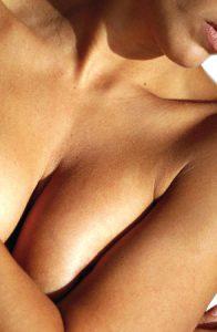 Hypertrophie mammaire - Dr Jauffret, chirurgien plasticien à Marseille